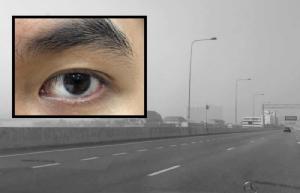 จักษุแพทย์ แนะวิธีดูแลดวงตาในภาวะฝุ่น PM2.5 เตือนโรคต้อ ภูมิแพ้ขึ้นตา เสี่ยงตาแดง เคืองตามากผิดปกติ