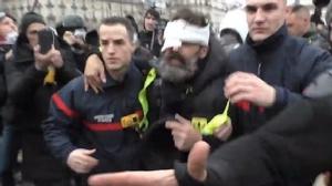 "In Pics: ผู้นำเสื้อกั๊กเหลืองตาบอดขั้นพิการทั้งชีวิต หลังโดน ""แฟลช-บอล"" ฝีมือตำรวจปารีสระหว่างประท้วง"