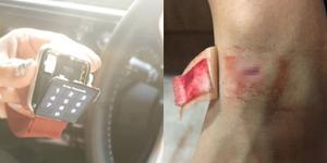 สาวใช้นาฬิกาสมาร์ทวอทช์ แบตระเบิดคามือ ภายหลังทางร้านพร้อมรับผิดชอบ