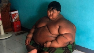 2 ปีลด 90 โล! วันนี้ของเด็กอ้วนที่สุดในโลก รีดน้ำหนักออกจนไม่เหลือเค้าเดิม(มีคลิป)