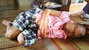 สุดเวทนา! สาวบุรีรัมย์ป่วยเนื้องอกขนาดใหญ่บนใบหน้า-สะโพก ฐานะยากจนวอนช่วยเหลือ