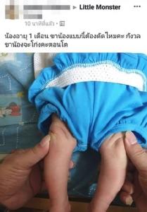 เตือน พ่อ-แม่ อย่าดัดขาเด็กทารกเสี่ยงขาหัก ชี้สรีระของทารกขาจะโก่งเป็นธรรมชาติ