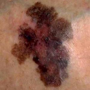 มะเร็งผิวหนังชนิดเมลาโนมา