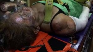 หญิงสูงวัยน้อยใจขอคืนดีสามีเก่าไม่สำเร็จ ตัดสินใจเผาตัวเองในรถ ไฟคลอกสาหัส