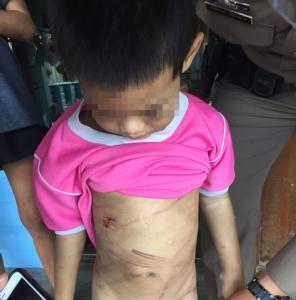 สุดทน!! แม่แท้ๆ ร่วมพ่อเลี้ยงกัมพูชาทำร้ายลูกชายวัย 6 ปี เจ็บปางตาย อ้างเครียดป่วย HIV