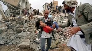 สงครามเยเมน-ซาอุฯ...แพ้แล้ว???