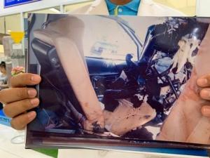 พี่ชายร้อง ยธ.ช่วยตามคดีน้องสาว-หลานชายเสียชีวิตจากอุบัติเหตุให้ได้รับเงินเยียวยา