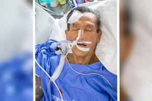 รพ.จุฬาฯ ตามหาญาติผู้ป่วยอายุ 80 ปี ถูก จยย.ชนขณะไปสวนลุม
