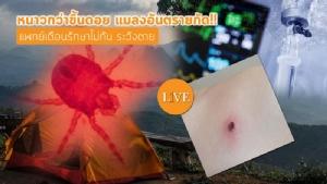 หนาวกว่าขึ้นดอย แมลงอันตรายกัด!! แพทย์เตือนรักษาไม่ทัน ระวังตาย