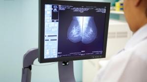 พบ'AI'ตรวจมะเร็งเต้านมแม่นกว่าหมอ ช่วยลดความผิดพลาด-เพิ่มโอกาสรักษา