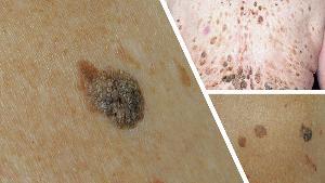 7 โรคพบบ่อย เมื่อผิวหนังแก่