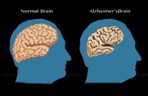 นักกอล์ฟสูงวัยทำให้ได้ 11 ข้อช่วยชะลอสมองเสื่อม / พลโทนายแพทย์ สมศักดิ์ เถกิงเกียรติ