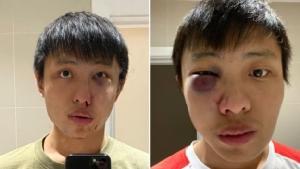 ตำรวจลอนดอนล่า 4 ผู้ต้องสงสัยรุมกระทืบคนเอเชีย เหยียดเป็นพวกแพร่เชื้อโควิด-19