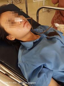 อุทาหรณ์! สาวป่วยกินยาแก้ปวดชนิดรุนแรง หายใจไม่ออก-อาเจียนเป็นเลือด
