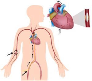 การตรวจสวนหัวใจ