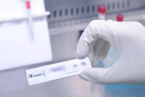 การตรวจคัดกรองภูมิคุ้มกันวินิจฉัยโรค COVID-19 แบบรวดเร็ว (Rapid Test) โดย N Health