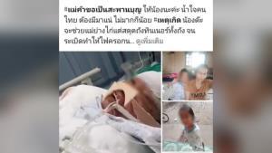 แม่สุดช้ำ! วอนช่วยเหลือลูกสาวถูกไฟคลอกทั้งตัว เผยไม่มีเงินเพียงพอค่ารักษา
