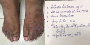 เพจดังเผยภาพ! เท้าของผู้ป่วยแผลผุพอง แนะวิธีที่ดีที่สุดควรดูแลรักษาความสะอาด
