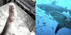 """""""ดร.ธรณ์"""" วอน ประชาชนในพื้นที่อย่าออกตามล่าฉลาม หลังนายกสตูลตั้งค่าหัวฉลามกัดเด็ก"""