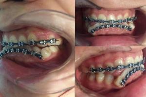 """เตือนภัย! วัยรุ่นจัดฟันแฟชั่น พบ """"หมอฟัน"""" เป็นเพียงเด็กวัยรุ่นหญิง หวั่นอันตรายวอนตรวจสอบด่วน"""