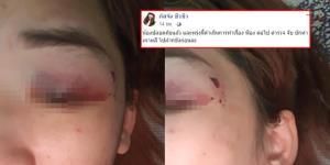 สาวไทยในเกาหลี ถูกแฟนหนุ่มทำร้ายร่างกาย-จับขังในห้อง ล่าสุดปลอดภัยแล้ว