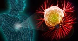 ทิสโก้เวลธ์เปิดทริก 5 ขั้นตอน เลือกประกันมะเร็งรับมือค่ารักษาพุ่ง