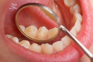 ฟันคุด คุดอย่างไร