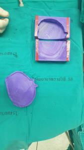 รพ.ราชวิถี ผ่าตัดกะโหลกเทียมเสมือนจริง ด้วยพิมพ์ 3D