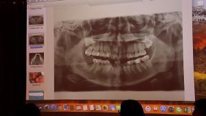 เตรียมฟ้องปลัด ก.สาธารณสุข ทันตแพทย์ลืมหัวกรอฟันในเหงือกถึง 5 ปี