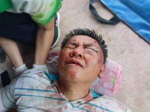 """""""ผู้กองปูเค็ม"""" ถูกทำร้ายร่างกาย หลังนำจับยึดตู้สล็อตที่พนมสารคาม ฉะเชิงเทรา"""