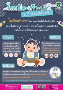 กรมควบคุมโรค แนะผู้ปกครองและสถานศึกษา ในช่วงหน้าฝนนี้ระมัดระวังบุตรหลานป่วยด้วยโรคมือ เท้า ปาก