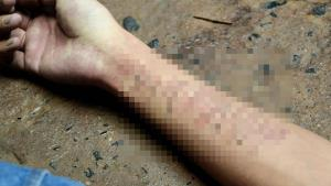 เศร้าสังเวยรักขม! หนุ่มเมืองช้างวิดีโอคอลคุยกับแฟนสาวก่อนผูกคอตาย พบกรีดแขนกว่า 30 แผล