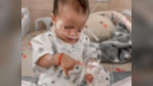 อุทาหรณ์! ลูกติดไวรัส RSV แทบไม่แสดงอาการ แนะเด็กเล็กอายุต่ำกว่า 1.5 ปี ควรระวังเป็นพิเศษ