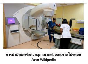 เทคโนโลยีบำบัดมะเร็งด้วยไอออนหนัก