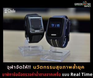 จุฬาจัดให้!! นวัตกรรมสุขภาพสุดล้ำ นาฬิกาอัจฉริยะ ตรวจเบาหวานแบบ Real Time
