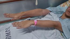 อึ้งหนัก! หนุ่มลำปางแพ้วัคซีนโควิด 24 วันไม่หาย ปากยังเบี้ยว-แขนขาชา/อ่อนแรง หดตัวไม่เท่ากัน