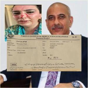 """ระทึก! ลูกสาวทูตอัฟกานิสถานถูกลักพาตัวและทรมานอย่างหนักถึงขั้น """"กระดูกหัก-สมองกระทบกระเทือน"""" กลางกรุงอิสลามาบัด"""