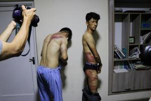 แพร่ภาพแฉ! 2 ผู้สื่อข่าวอัฟกันโดนตอลิบานทำร้าย หลังถูกคุมตัวขณะทำข่าวการชุมนุมต่อต้าน