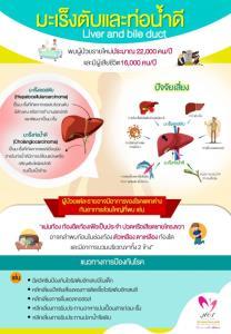มะเร็งตับพบมากเป็นอันดับ 1 ของคนไทย