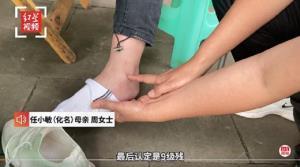 อันตราย! นักเรียนหญิงจีนวัย 14 ปี ถึงขั้นพิการถาวร หลังโดนลงโทษสั่งลุกนั่ง 300 ครั้ง